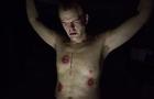 Jeffrey Junkie (Heroin Enemas)